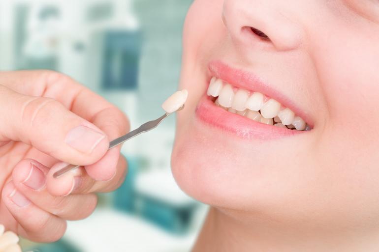 Facetas Cerâmicas em Medicina Dentária