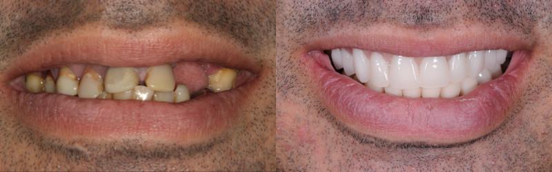 Antes e depois de prótese total superior e inferior implanto-suportada sobre implantes